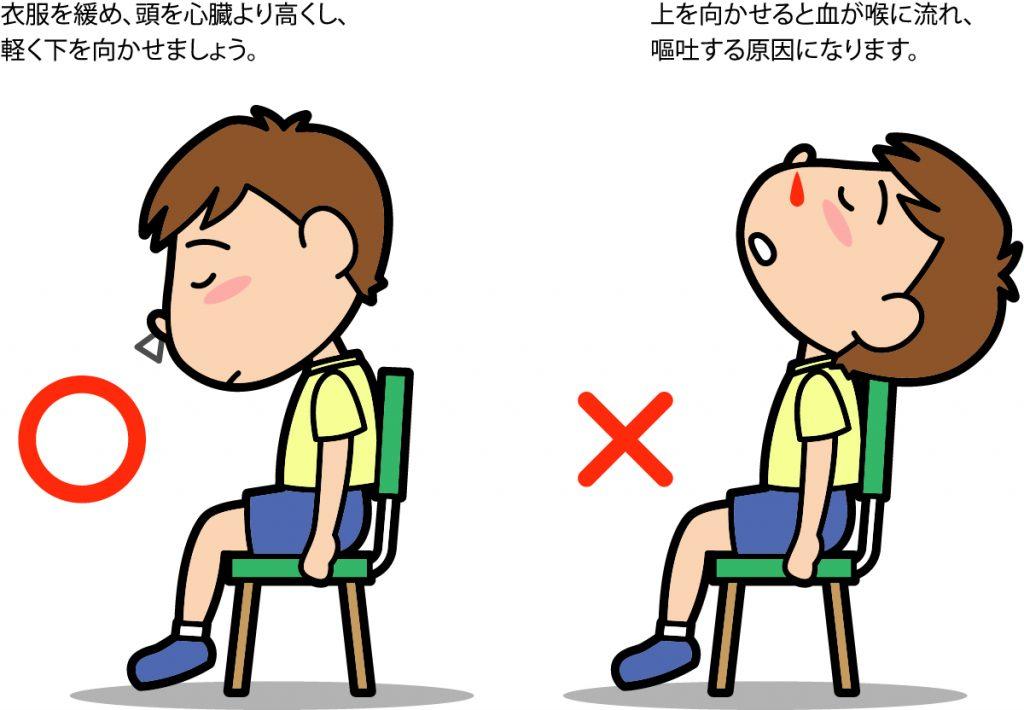 鼻血の姿勢