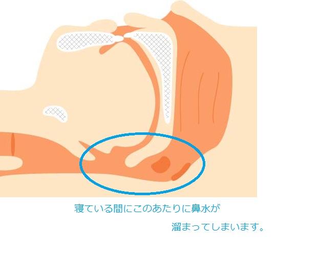 後鼻漏の説明